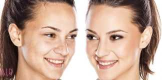 Top 20: Must See Tips To Improve Your Skin & Reduce Wrinkles (2020)