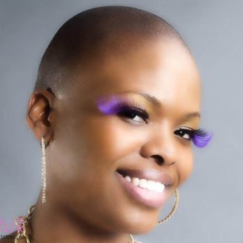 Woman with bald scalp
