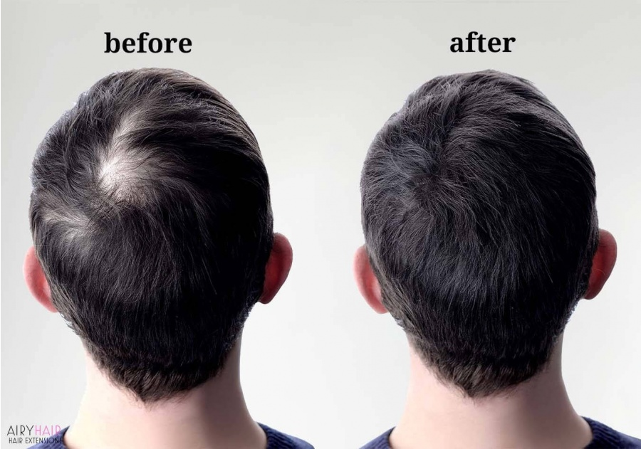 Men Toupees (Mono Wigs) for Balding Spots, Before & After